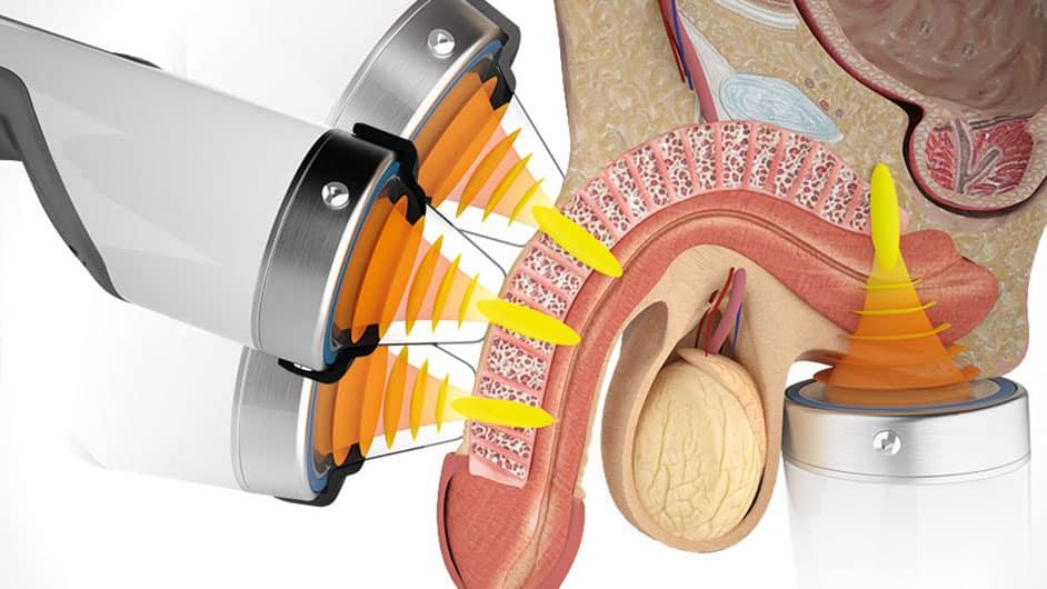 Aplicación de ondas de choque a un paciente con disfunción erectil